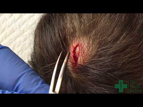 Removal of a Pilar Cyst with Capsule Intact