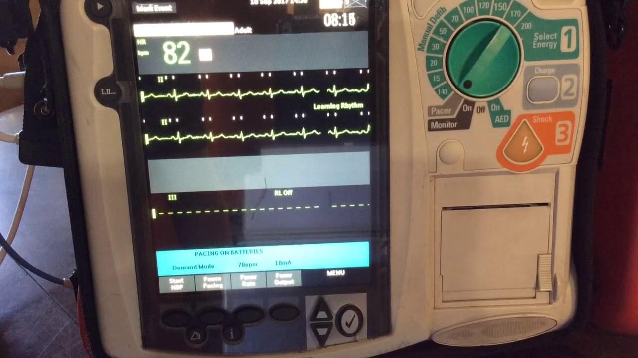 Transcutaneous Pacing on Philips Cardiac Monitor