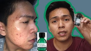 This is what happened to my face when i used the tea tree oil from body shop. in video, showed pictures of progress experie...