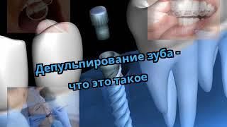Депульпирование зуба - что это такое