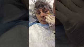 Eye Treatment Tear Trough Filler PRP treatment Birmingham thumbnail