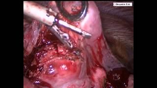 Торакоскопическоей удаление метастаза легкого. Thoracoscopic enucleation of lung metastases.(, 2014-11-13T15:57:20.000Z)