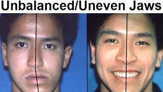 Repeat youtube video Orthodontic Treatment of Asymmetrical, Unbalanced, Disproportionate, or Unequal Jaw by Dr Mike Mew