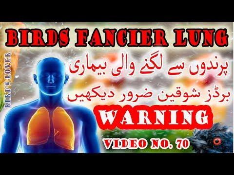 What Is Birds  Fancier Lung Disease  Its Treatment. Video No 70