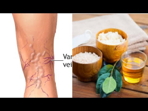 Try This Magic Remedies To Remove Varicose Veins Naturally