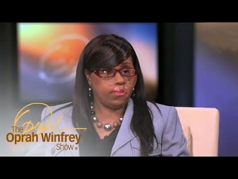 A Miracle of Reconstructive Surgery | The Oprah Winfrey Show | Oprah Winfrey Network
