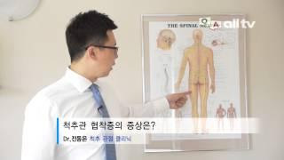 Q&A-DR전동은6-척추관 협착증의 증상은?