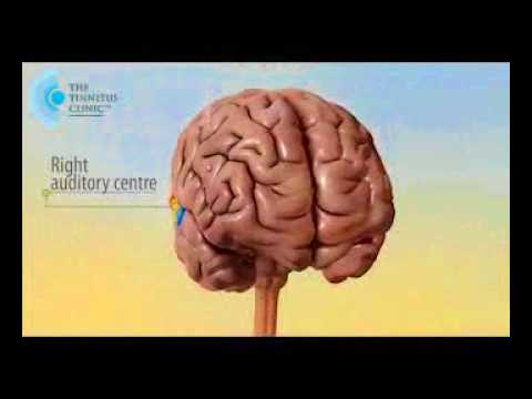 Josie Taberner | The Tinnitus Clinic