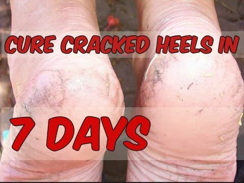Cracked Heels Remedy at Home in Hindi | Best Foot Cream for Cracked Heel, DIY affordable foot cream
