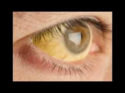 Cara Memutihkan Mata Yang Kuning Youtube
