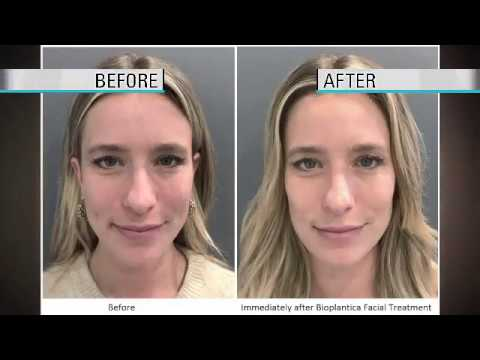 Nathan Newman, M D  – Cutting Edge Cosmetic Surgery