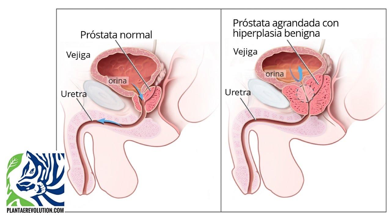 los mejores alimentos para el agrandamiento de la próstata