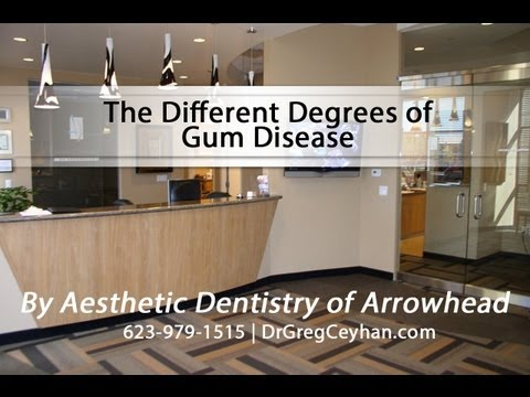 The Different Degrees of Gum Disease | Aesthetic Dentistry of Arrowhead