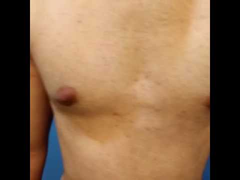 Revision Gynecomastia Gland Removal, Assured Results, NO Fee by Dr. Lebowitz, Long Island, New York.