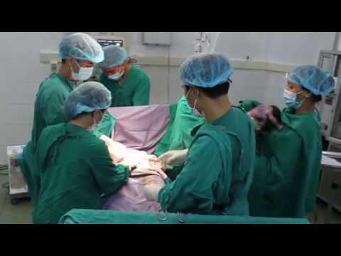 Phẫu thuật lấy thai tại Bệnh viện đa khoa tỉnh Tuyên Quang