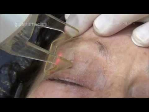 Vinings ga rejuvenecimiento facial