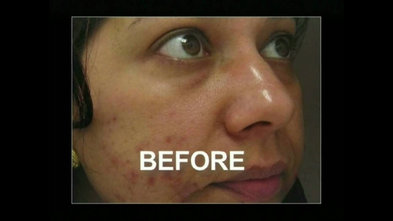 Microdermabrasion for uneven skin tone and acne prone skin youtube solutioingenieria Gallery