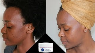How to Visibly Reduce Blemishes and Dark Spots   Nivea Perfect and Radiant Day Cream SPF 15 REVIEW