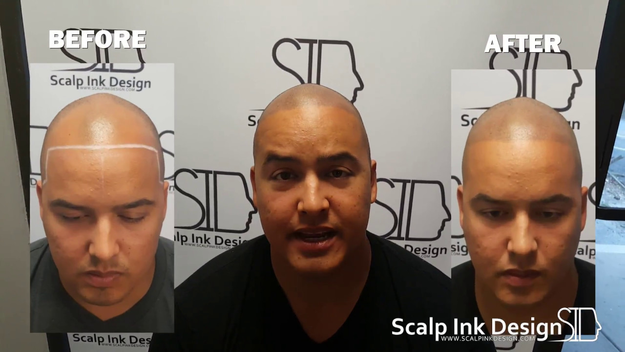 Scalp Micropigmentation Smp Before And After Miami