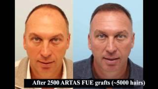 Ex England Legend David Platt Has ARTAS Robot FUE Hair Transplant at the Farjo Hair Insitute thumbnail