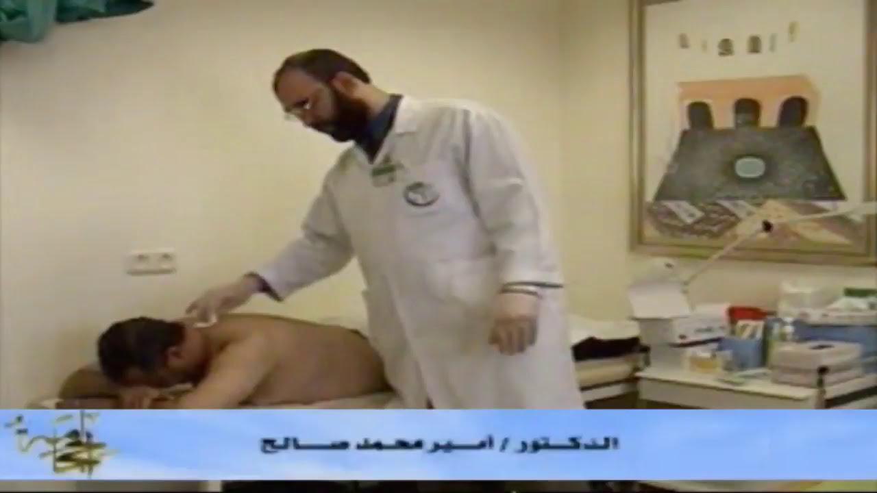 طريقة عمل الحجامة الصحيحة | الدكتور أمير صالح