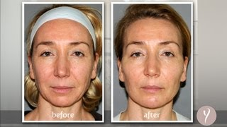 Y LIFT ® 2013 - Irina | Instant, Non Surgical Facelift