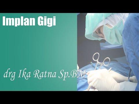video tanam gigi bersama dokter spesialis bedah mulut jakarta