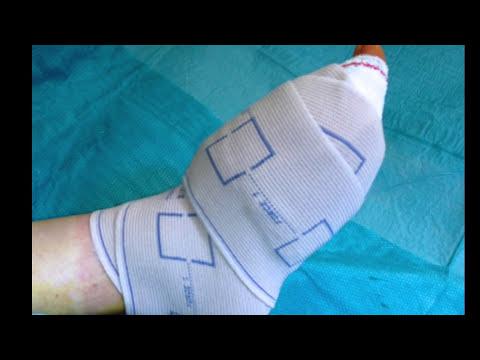 operation orteil cassé