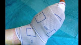 Rééducation des petits orteils après chirurgie