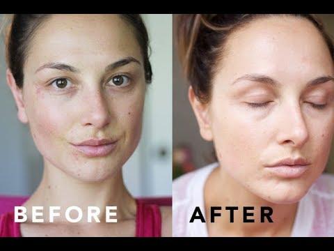 Causes Facial dermatitis