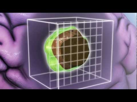 Is Proton Radiation Safer Or More Effective Than Other
