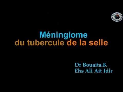 MENINGIOME DU TUBERCULE DE LA SELLE - YouTube