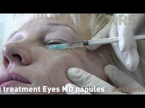 RRS Eyes   tratament anti imbatranire ochi   MD papule