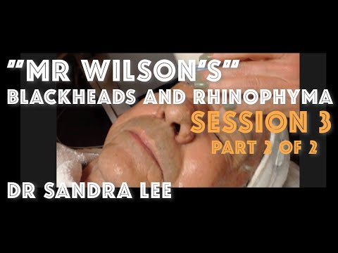 """Session 3, Part 2 of 2: """"Mr Wilson"""" Blackheads Extracted and rhinophyma sculpted"""