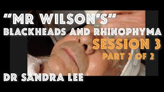 "Session 3, Part 2 of 2: ""Mr Wilson"" Blackheads Extracted and rhinophyma sculpted"