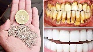 كيف بيضت أسناني في المنزل في 3 أيام و ازلت الجير و بلاك الأسنان دون الذهاب إلى طبيب الأسنان