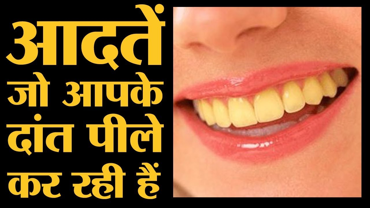 रोज़ ये करना छोड़ देंगे तो आपके दांत पीले नहीं होंगे | Yellow teeth। The Lallantop