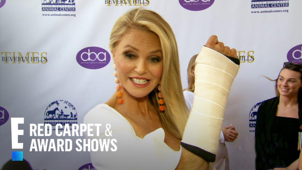 Christie Brinkley Shares Broken Arm Update | E! Red Carpet & Award Shows image