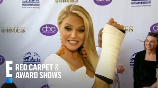 Christie Brinkley Shares Broken Arm Update | E! Red Carpet & Award Shows Video