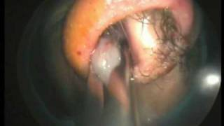 Endoscopic Sinus Surgery  (Dr. Rey Caro)