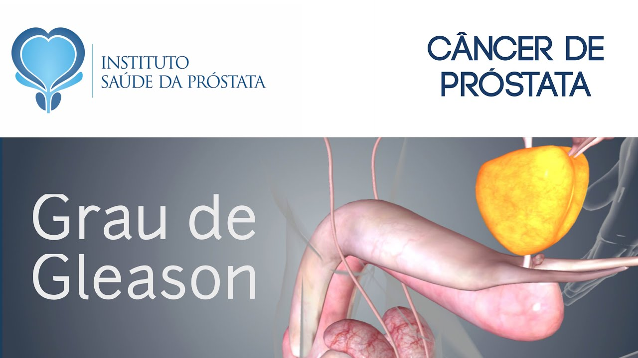 adenocarcinoma de próstata acinar gleason 7 3