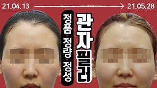 얼굴볼륨 살리는 관자필러, 측두근보톡스 시술 영상 톡스…
