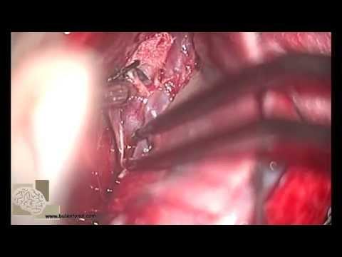 aneurysm of daca