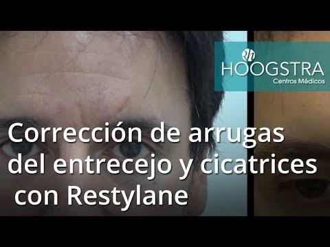 Corrección de arrugas del entrecejo y cicatrices con Restylane (18013)