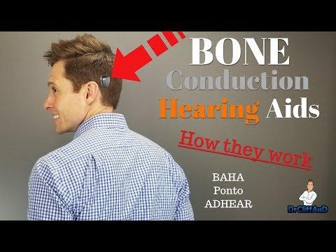 How Bone Conduction Hearing Aids Work   Cochlear BAHA, Oticon Medical Ponto, Medel ADHEAR