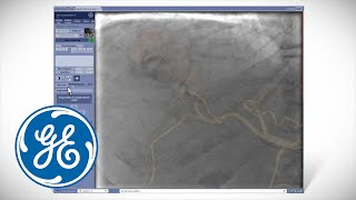 GE-AW Innova Vision Radiologie-Imaging-Software-Video