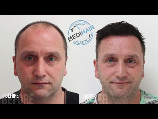 Hair transplant before&after, Medikliniek Amsterdam