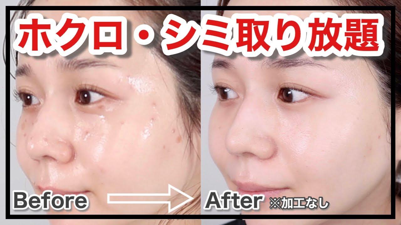 【ホクロ・シミ取り】レーザー治療!10日間の経過報告【アラサー美容】