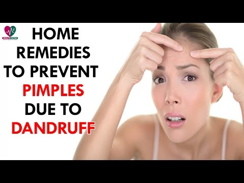 Home Remedies To Prevent Pimples Due To Dandruff - Health Sutra