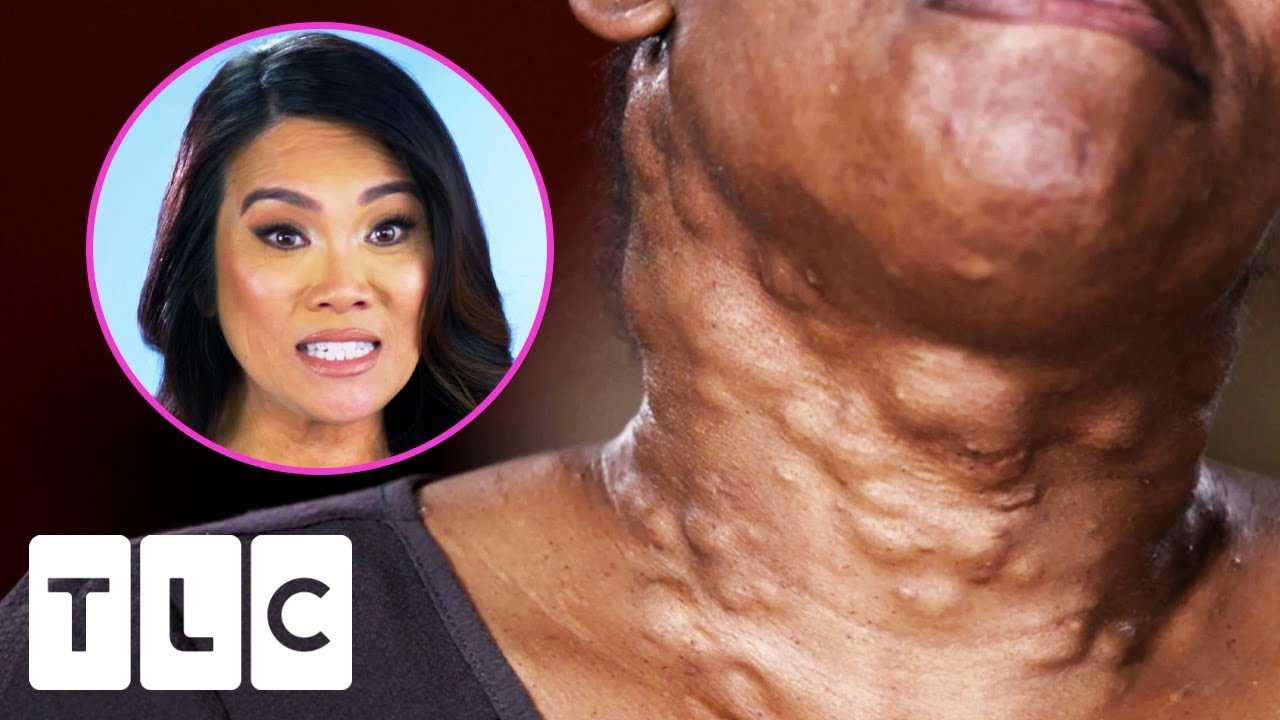 Download Dr. Lee Pops Over 20 Cysts On This Woman's Neck | Dr. Pimple Popper